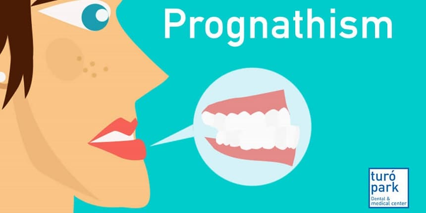 prognathism
