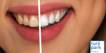 Teeth Whitening: Interview with Madeleine English-speaking orthodontist in Barcelona