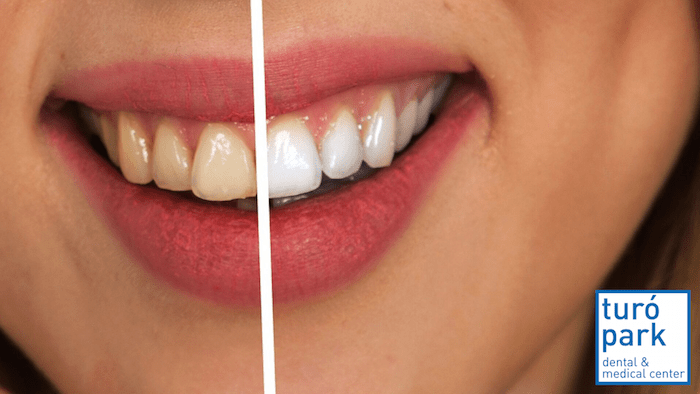 teeth whitening - english speaking dentis barcelona - turo park dental and medical clinic center