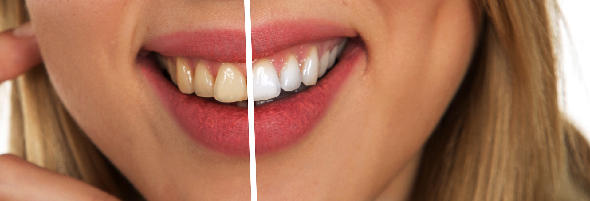 blanchiment - dentiste francais barcelone - Turo Park dental and medical center