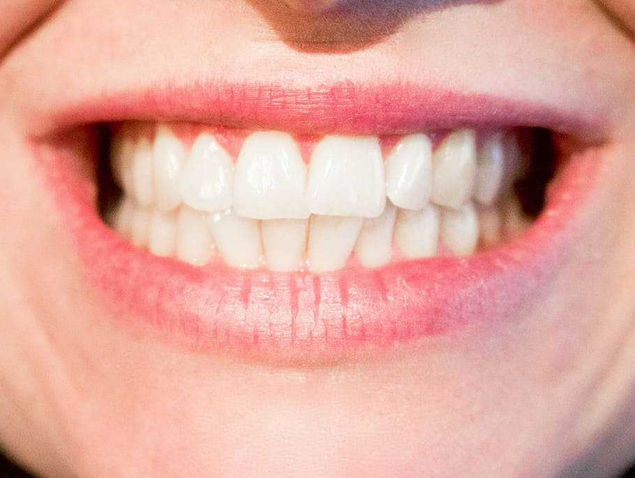 smiling with dental crowns