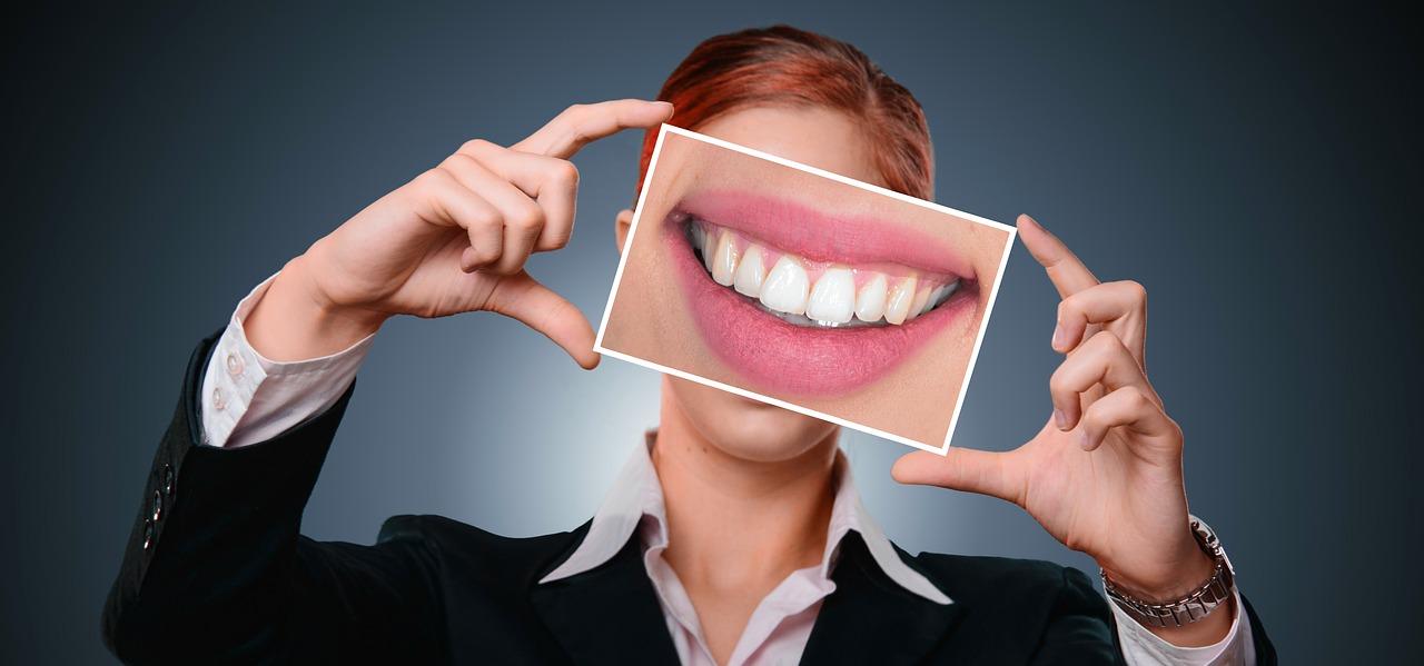 sourire blancheur femme