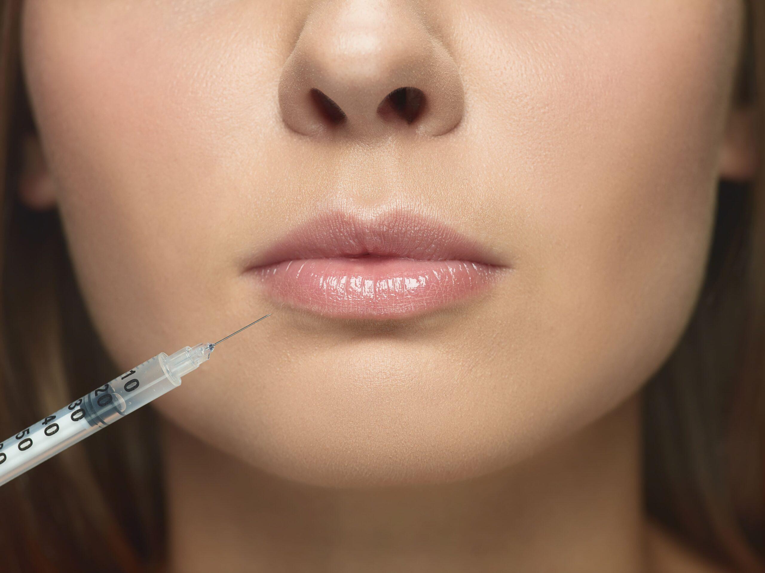 injections acide hyaluronique lèvres